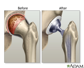 Medium joint replacement