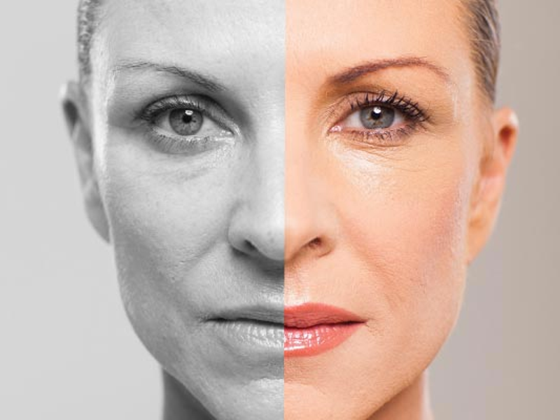 look younger without plastic surgery